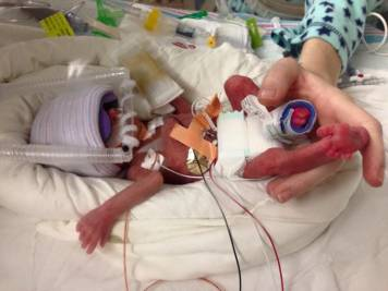 Forged By Fire: Kayla Noel, Warrior Mom to Micro-Preemie and Devoted Wife, Deserves a Break!